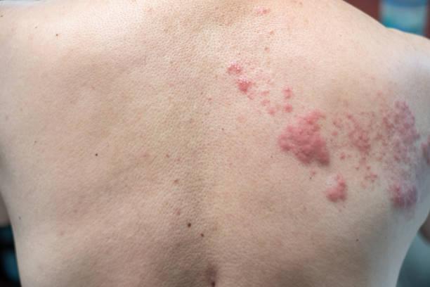 schindeln (krankheit), herpes zoster, varicella - zoster-virus. hautausschlag und blister - gürtelrose stock-fotos und bilder