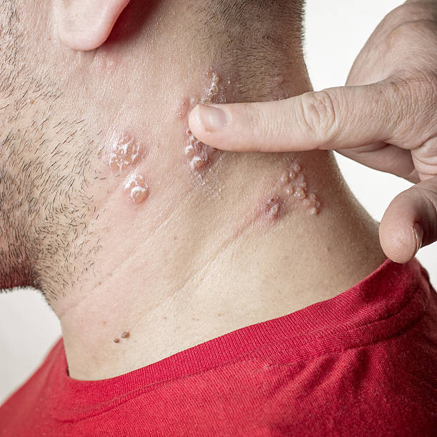 shingles virus stock photo