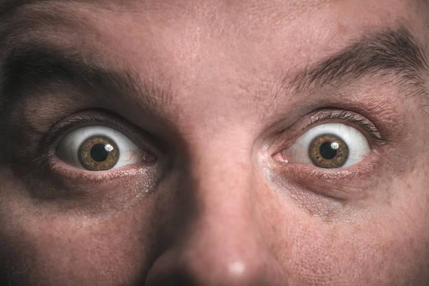 Schock. Überraschung. Weit aufgerissenen Augen. Starrte. – Foto