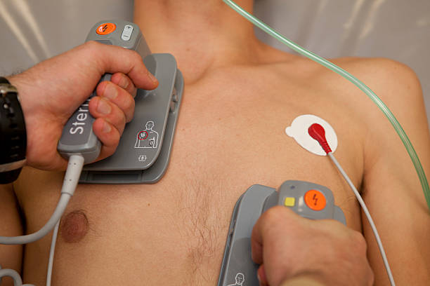 shocking man with a defibrillator foto