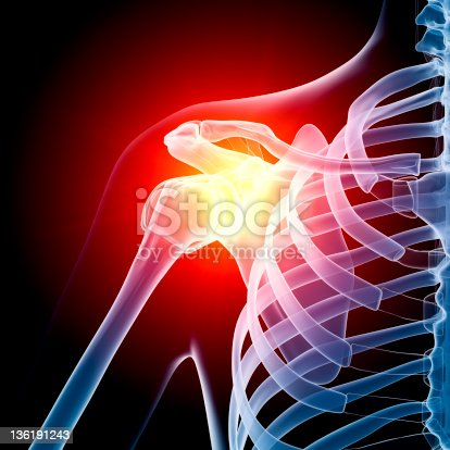 istock Shoulder in pain x-ray 136191243