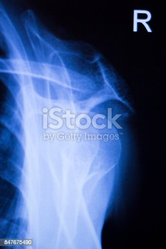 istock Shoulder joint injury xray traumatology and orthopedics test medical scan used to diagnose sports injuries in patient. 847675490