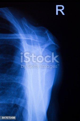 istock Shoulder joint injury xray traumatology and orthopedics test medical scan used to diagnose sports injuries in patient. 847675498
