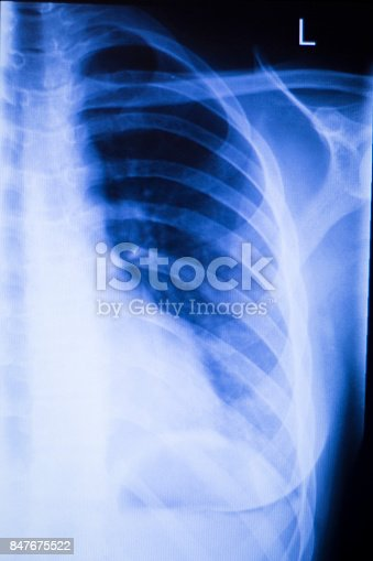 istock Shoulder joint injury xray traumatology and orthopedics test medical scan used to diagnose sports injuries in patient. 847675522