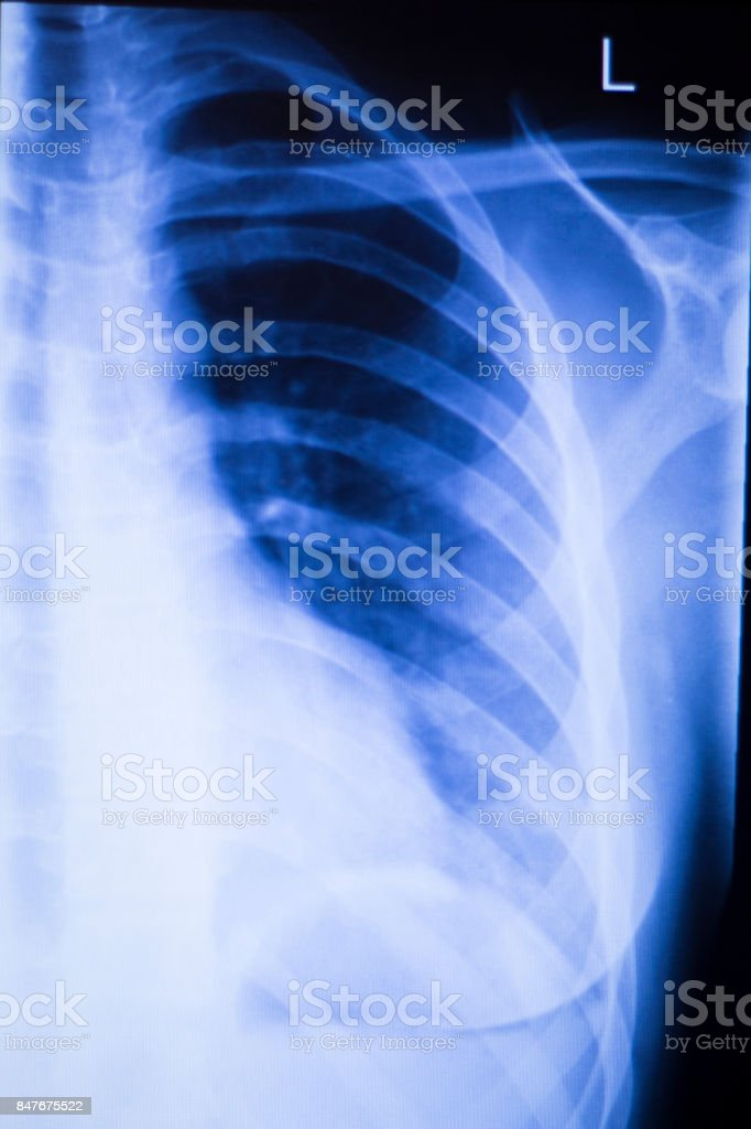 Shoulder joint injury xray traumatology and orthopedics test medical scan used to diagnose sports injuries in patient. stock photo