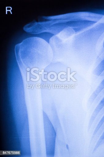istock Shoulder joint injury xray traumatology and orthopedics test medical scan used to diagnose sports injuries in patient. 847675566