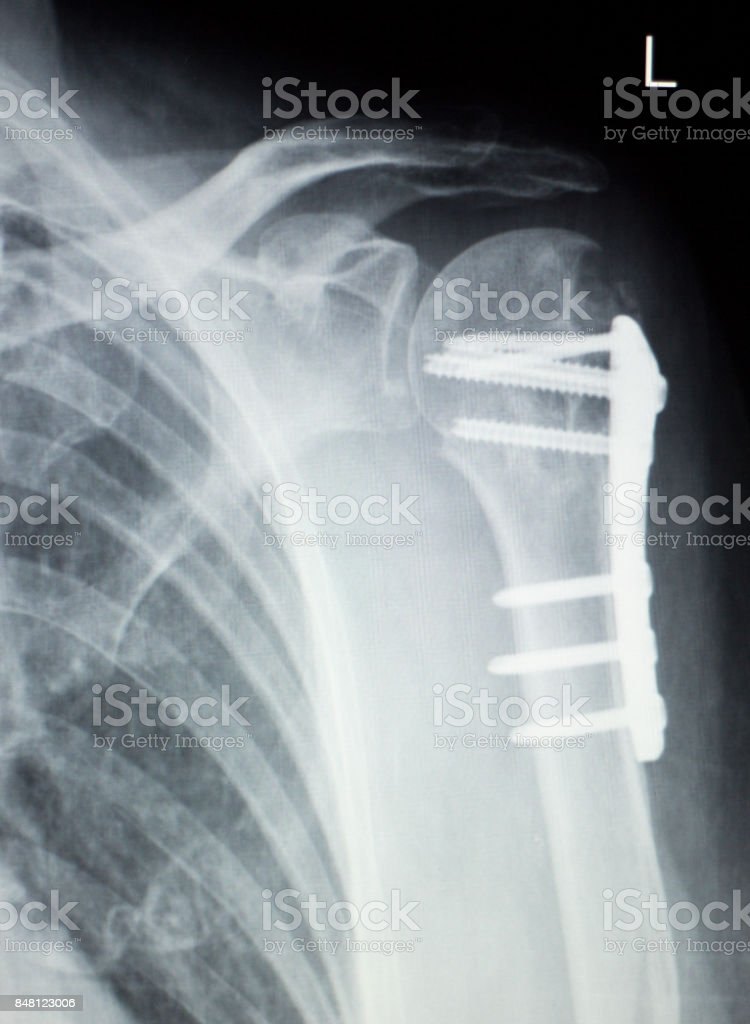 Shoulder Joint Replacement Orthopedic Titanium Metal Traaumatology ...