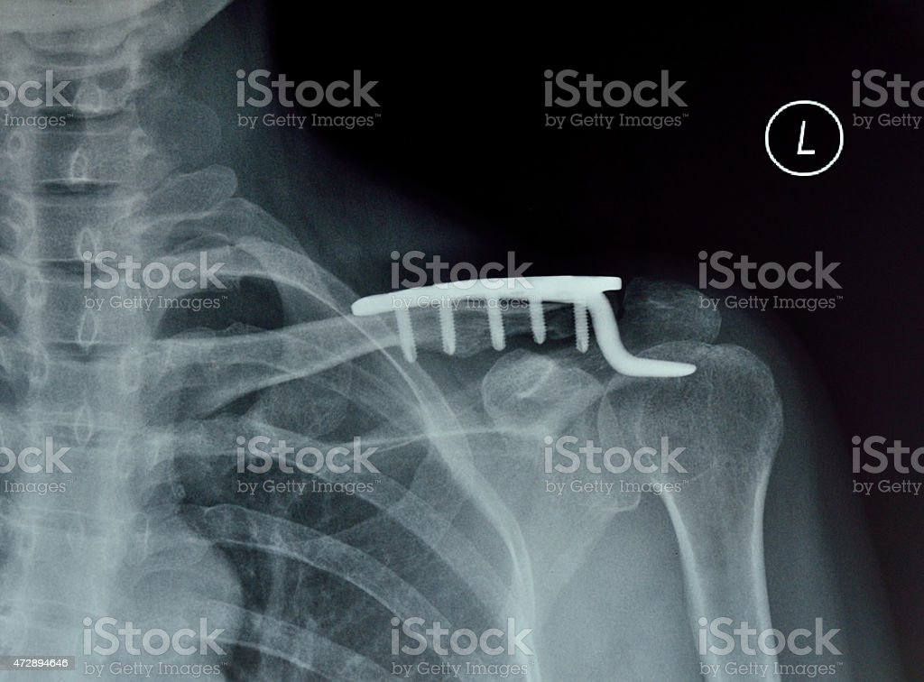 Shoulder joint X-ray stock photo