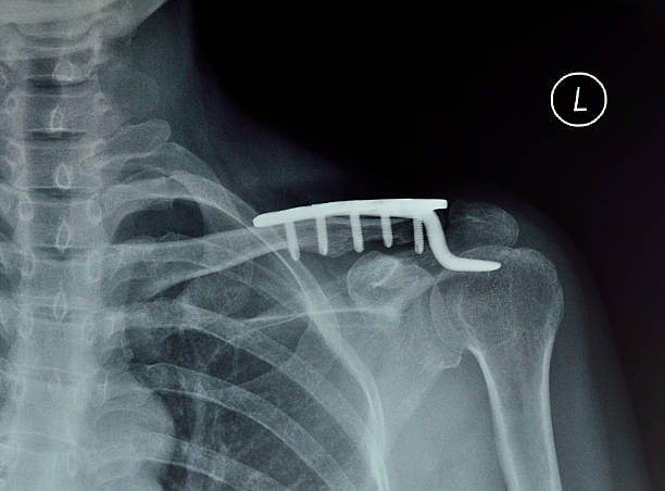 shoulder joint x-ray - shoulder surgery stock photos and pictures