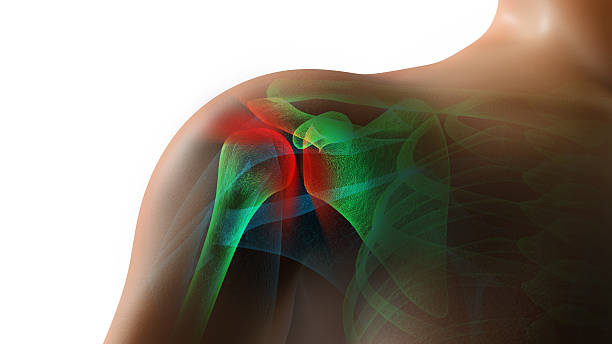 Shoulder Pain Injury stock photo