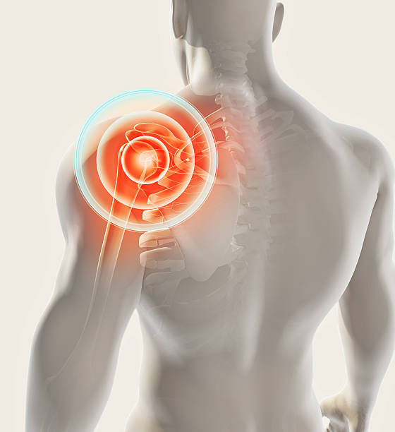 Shoulder painful skeleton x-ray, 3D illustration. stock photo