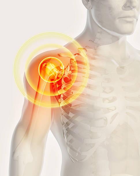 Shoulder painful skeleton x-ray, 3D illustration. - foto stock