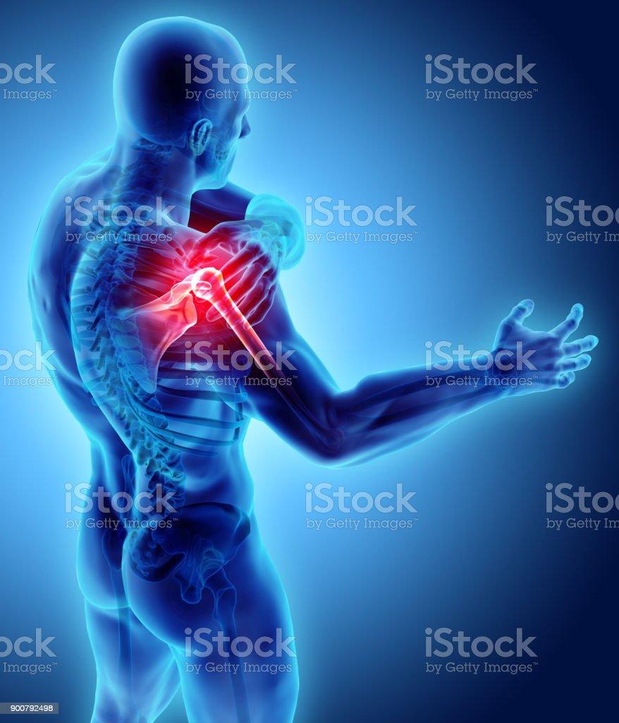 L'épaule douloureuse radiographie squelette, illustration 3D. - Photo