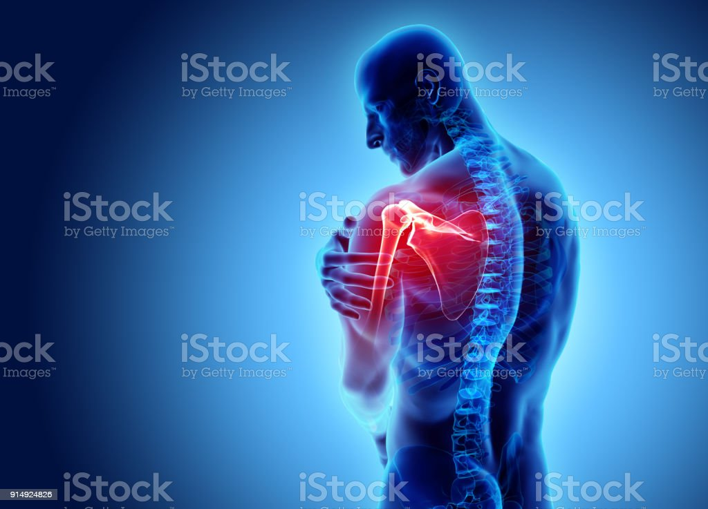 Shoulder painful skeleton x-ray, 3D illustration. royalty-free stock photo