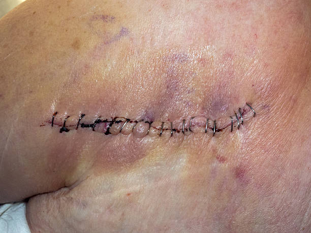shoulder replacement scar - shoulder surgery stock photos and pictures