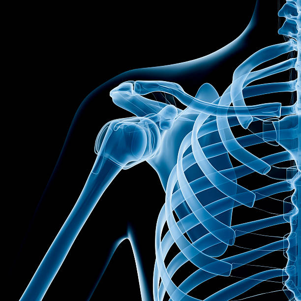 shoulder x-ray - shoulder surgery stock photos and pictures