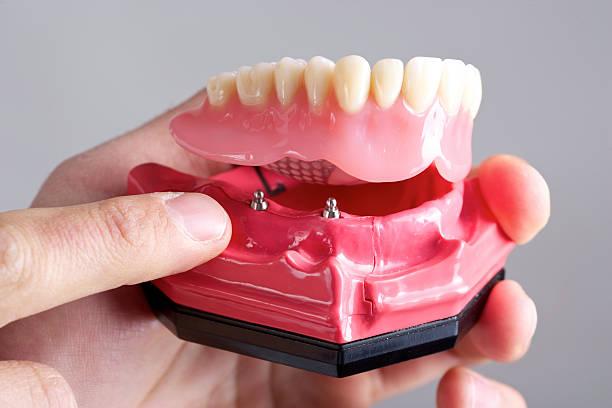 Montrer implant - Photo