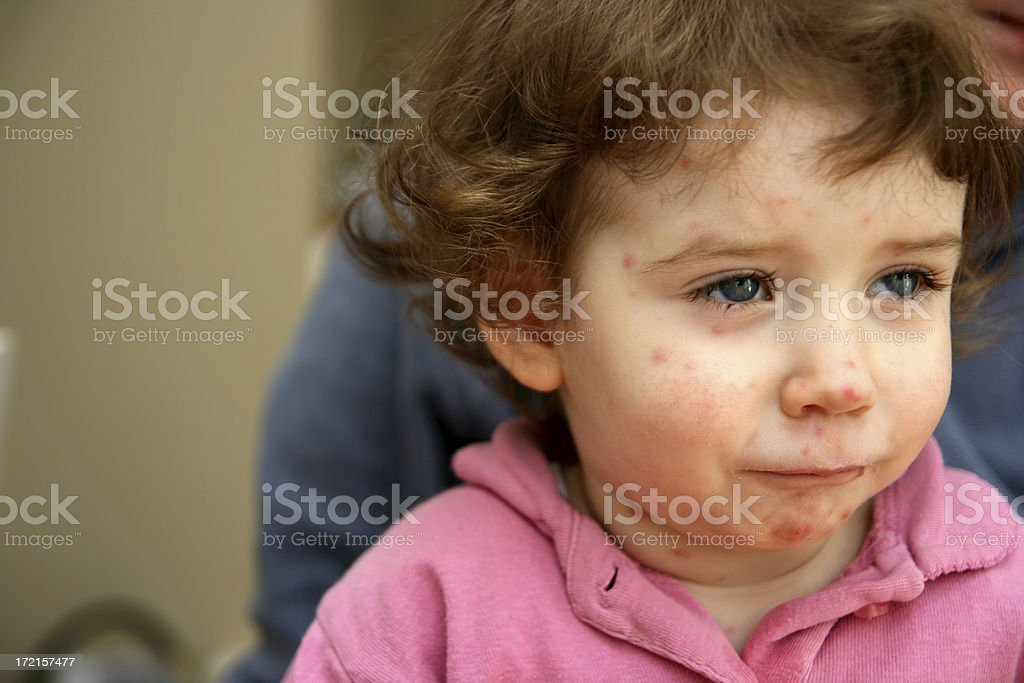 Sick child with red breakout all over his face stock photo
