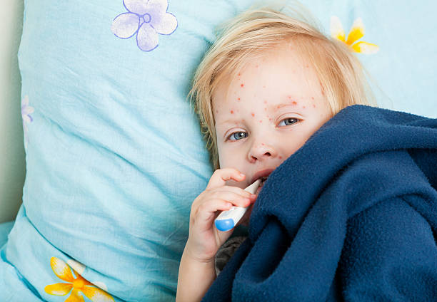 A sick girl with red spots in bed with a thermometer  stock photo