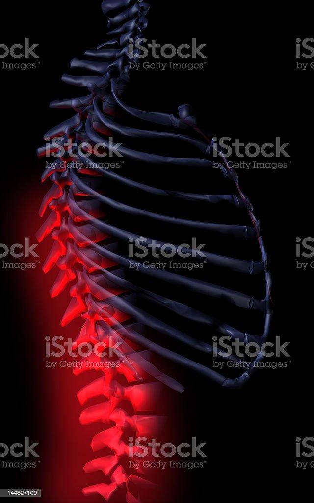 Sick spine royalty-free stock photo