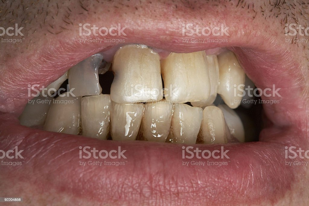 sick tooth royalty-free stock photo