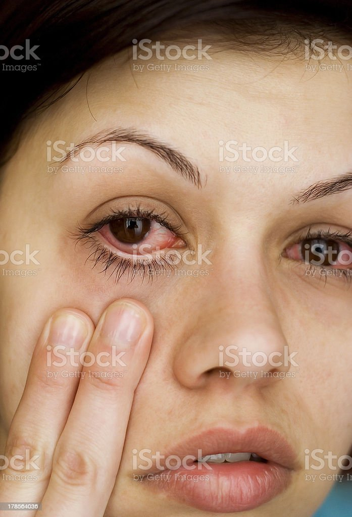Sick woman pulling down her eyelid to see red eyes royalty-free stock photo