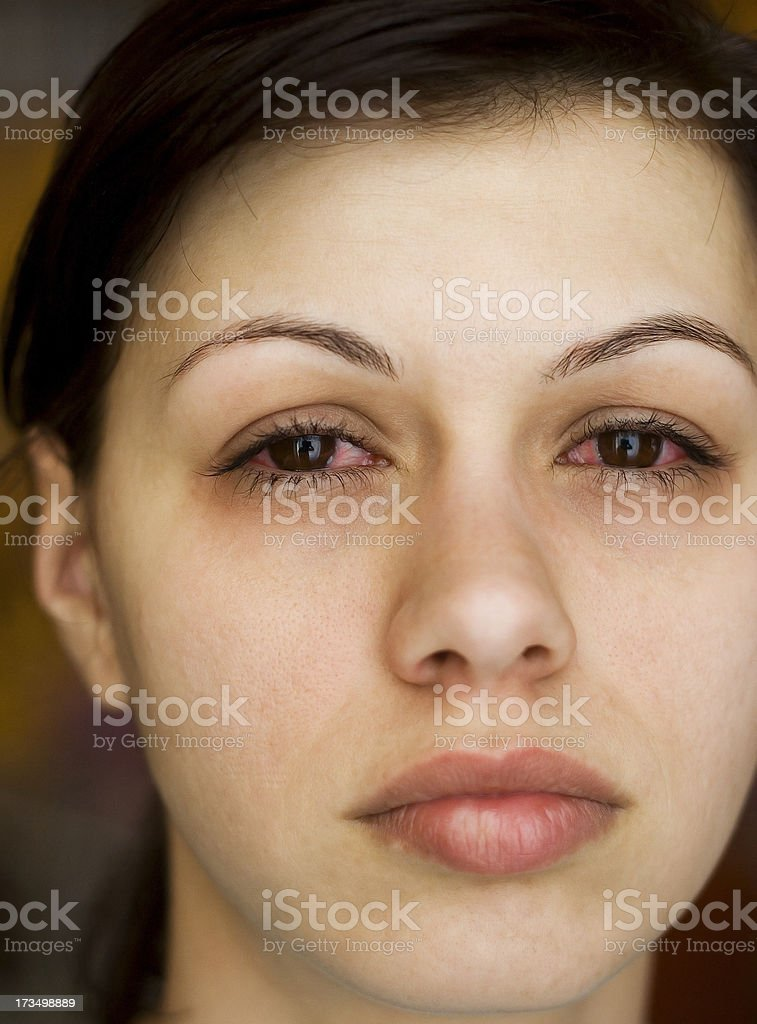 Sick woman's eyes royalty-free stock photo
