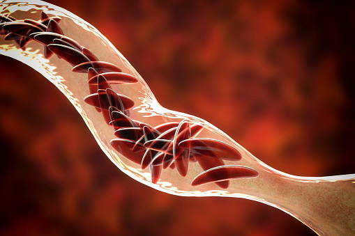 istock Sickle cell anemia 1059145338