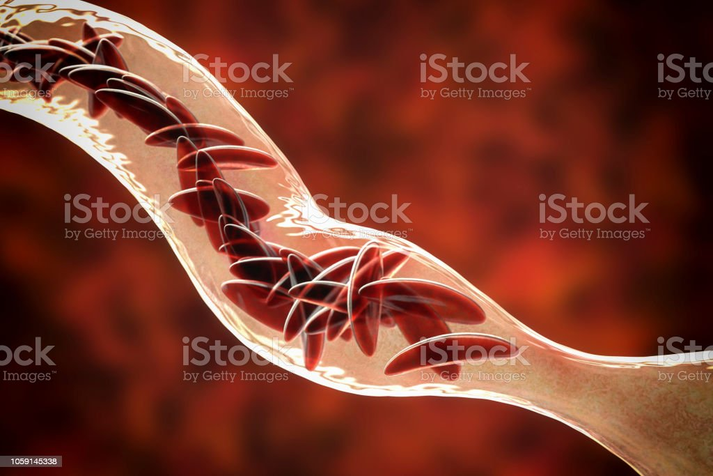 Anemia falciforme - foto de acervo