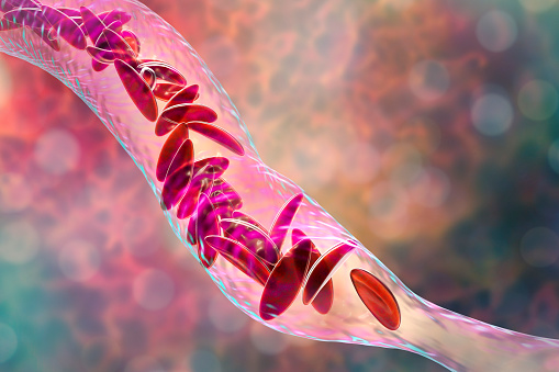 istock Sickle cell anemia 1059145434