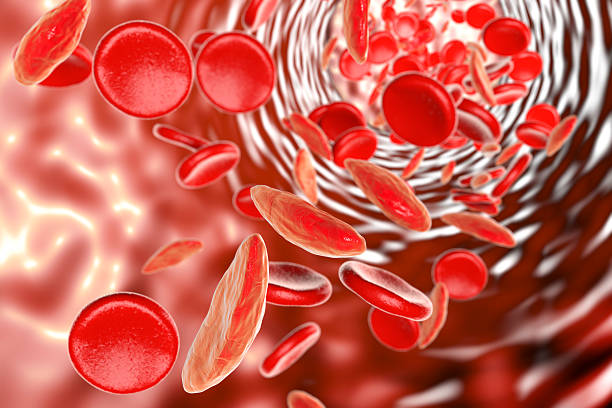 Sickle cell anemia Sickle cell anemia, 3D illustration showing blood vessel with normal and deformated crescent-like red blood cells anemia stock pictures, royalty-free photos & images