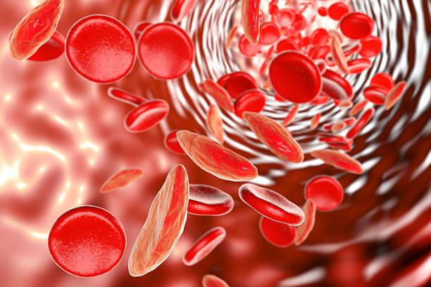 sickle cell anemia - anemia foto e immagini stock