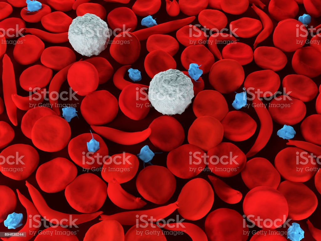 Sickle cell anemia royalty-free stock photo