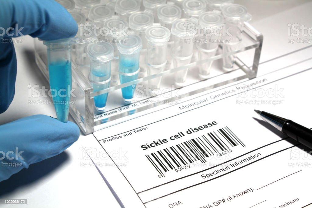 Investigação de doença falciforme - foto de acervo