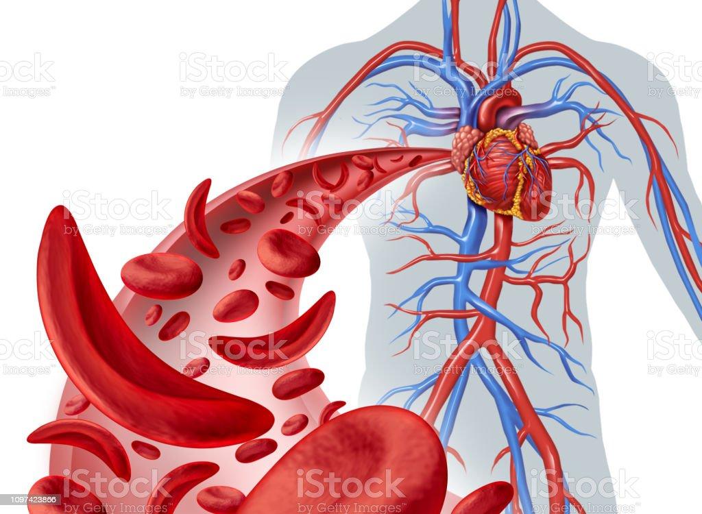 Circulação de coração de anemia falciforme - foto de acervo