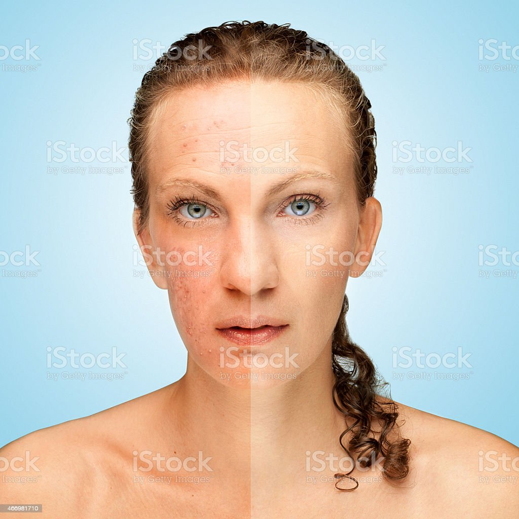 Side by side comparison for acne treatment stock photo