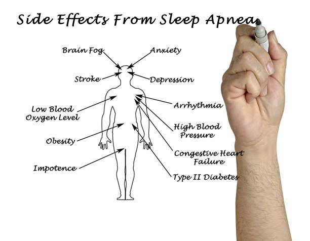 Side Effects From Sleep Apnea stock photo
