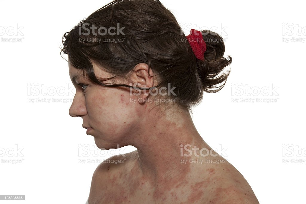 Side view of a woman suffering from red atopic dermatitis royalty-free stock photo
