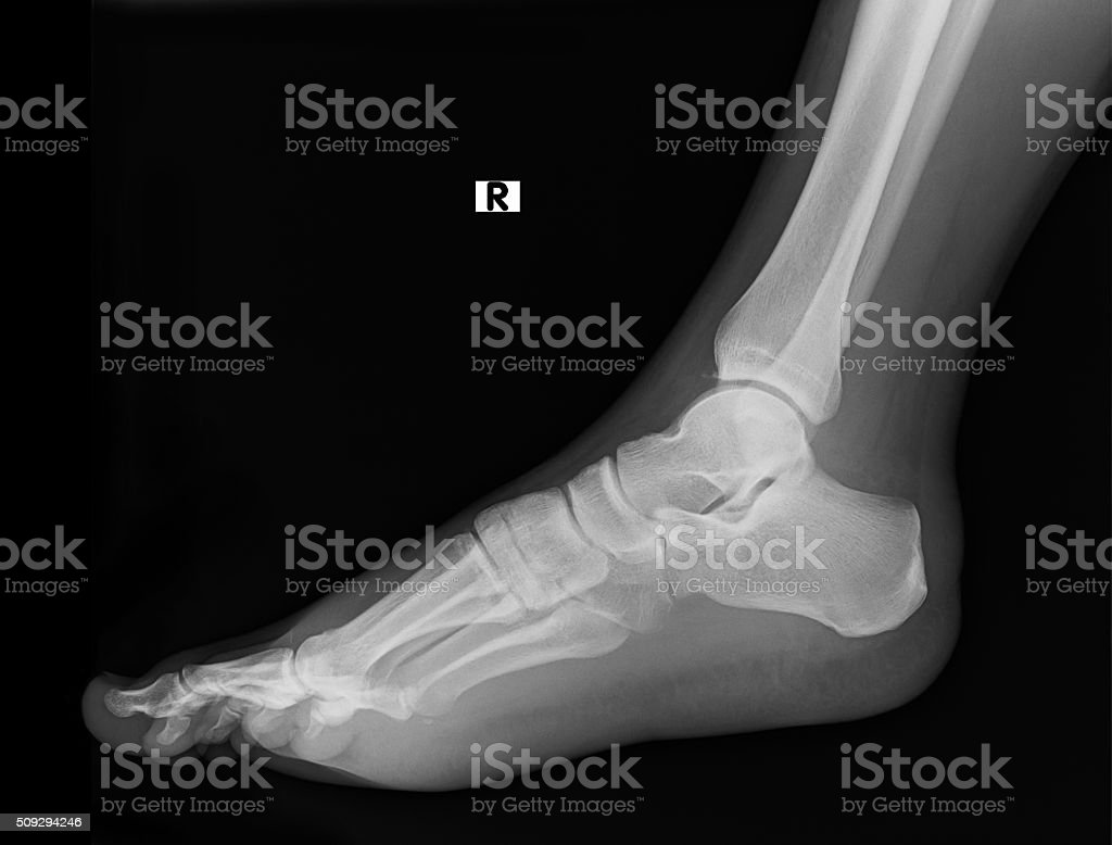 Side View Of Humans Feet Bones Under Xray Stock Photo & More ...