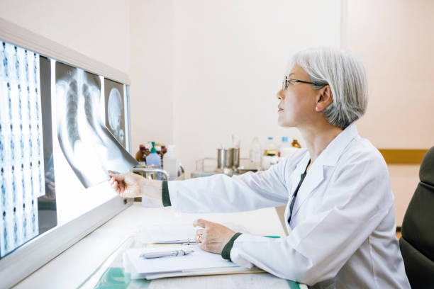 가슴 x 레이를 보고 고위 여성 의사의 측면 보기 - x 레이 뉴스 사진 이미지