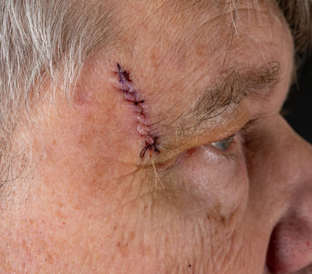 Side view of senior man after MOHS surgery to remove skin cancer stitches in wound stock photo