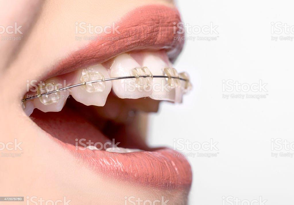 Vista lateral de dientes con aparatos de ortodoncia - foto de stock