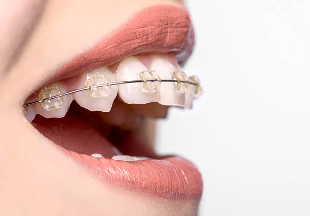side view of teeth with braces stock photo