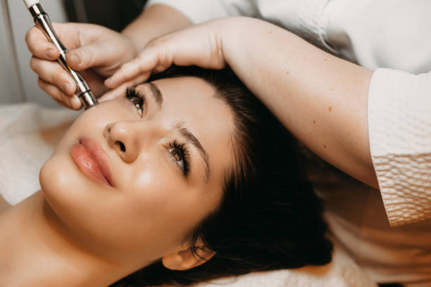 Side view portrait of a cute woman doing microdermabrasion with derma pen on her face in a wellness center. stock photo