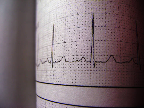 Sinus Heart Rhythm On Electrocardiogram Record Paper Showing Normal P Wave stock photo