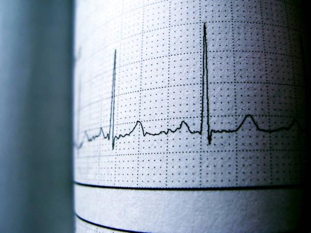 rythme cardiaque sinusal sur électrocardiogramme enregistrer des ondes p papershowing normal - rythme cardiaque photos et images de collection