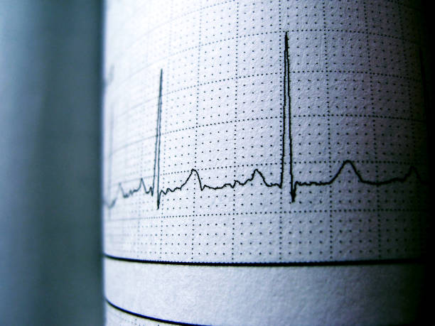 Ritmo cardíaco em eletrocardiograma gravar PaperShowing Normal onda de P - foto de acervo