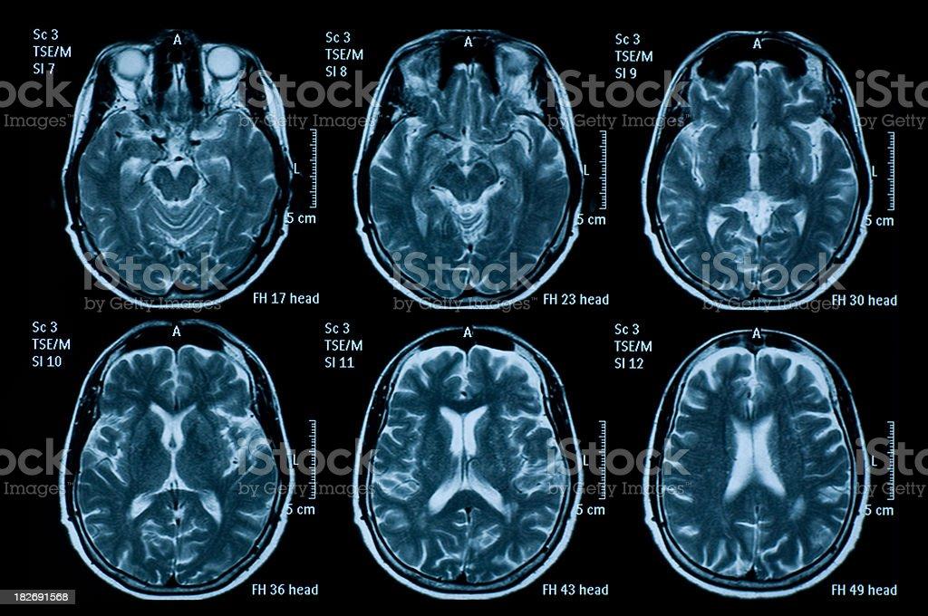 Six individual brain MRI images stock photo