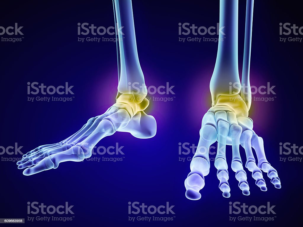 Skeletal Foot Injuryd Talus Bone Xray View Stock Photo & More ...