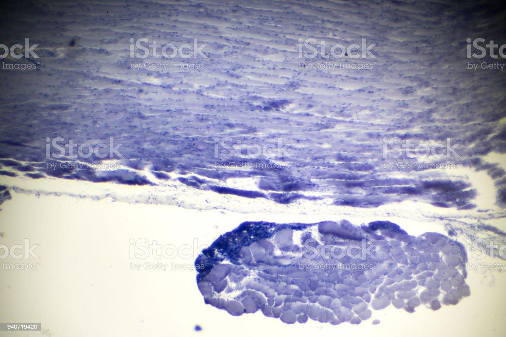 Skelettmuskulatur Längsschnitt In Der Mikroskopie Stock-Fotografie ...